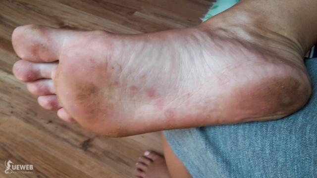 moja noha deň po :)